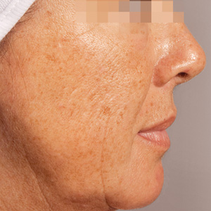 Aged skin Antes GREEN PEEL Classic