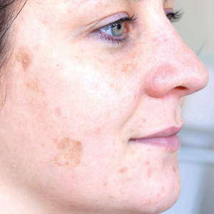 Pigment spots Depois a GREEN PEEL herbal peeling