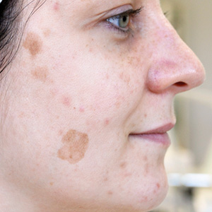 Pigment spots Antes a GREEN PEEL herbal peeling